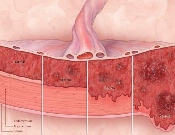 Nhau thai Bio Placenta nội sinh - Bước tiến vượt bậc của Nhật Bản trong nghiên cứu trị nám